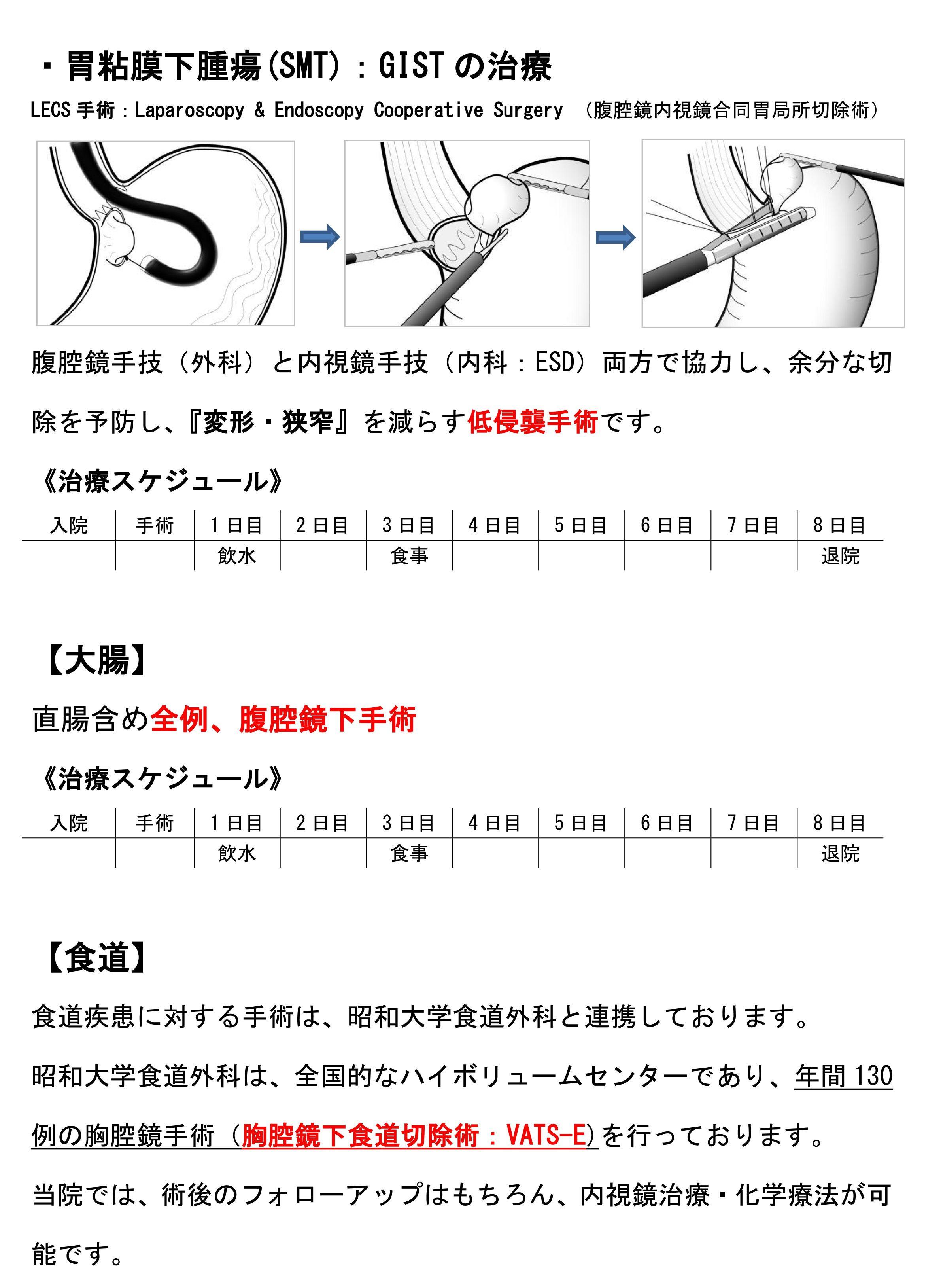 胃粘膜下腫瘍(SMT):GISTの治療