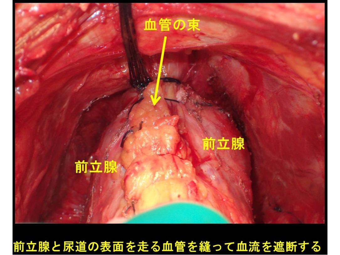 前立腺手術2