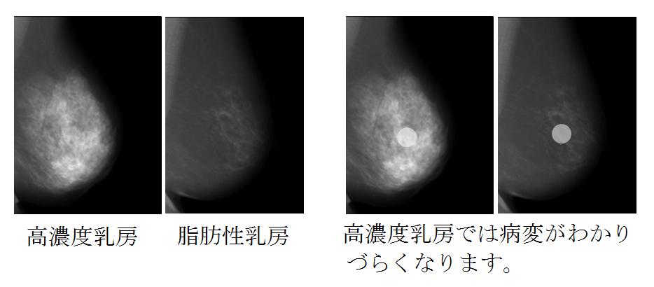 高濃度乳房